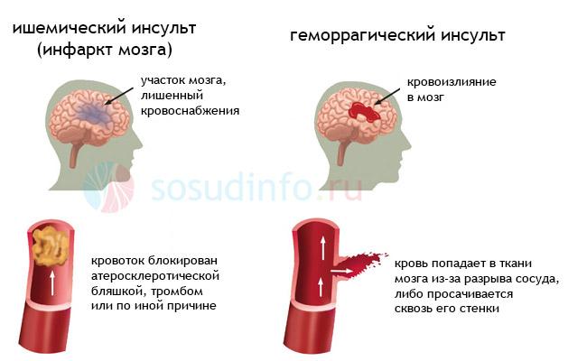 мозг): симптомы, лечение,